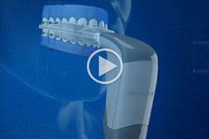 Acceledent Advanced Orthodontics Bellevue