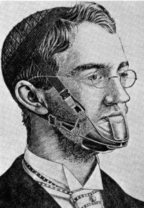 orthodontics history bellevue wa