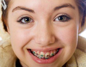 Buck Teeth Bellevue WA