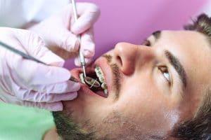 Adult Orthodontics Bellevue WA